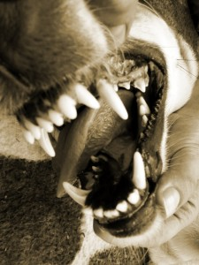San Diego dog bite attorney explains California dog bite law and rights of attack victims